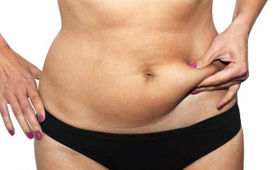 abdominoplasty surgery center