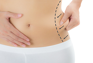 liposuction-surgery-in-coimbatore.