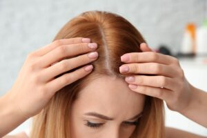 Highly standard non surgical hair replacement center in coimbatore