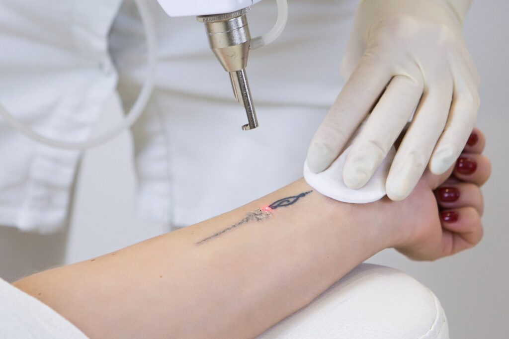 laser tatoo removal in coimbatore