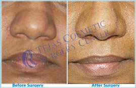 rhinoplasty-surgery coimbatore